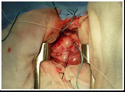 犬の心臓手術